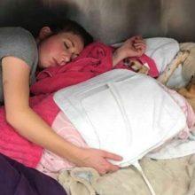 Veterinária dorme com o cão queimado para que ele não se sinta desprotegido