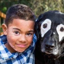 Garoto com vitiligo recupera a autoestima conhecendo um cão com a mesa condição que ele